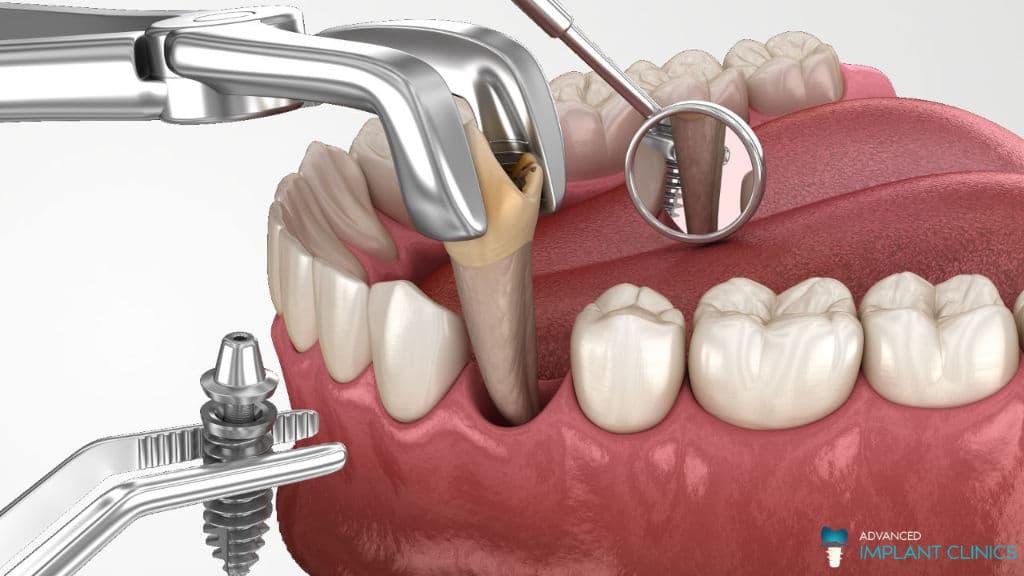 Άμεση φόρτιση εμφυτεύματος μετά την εξαγωγή δοντιού