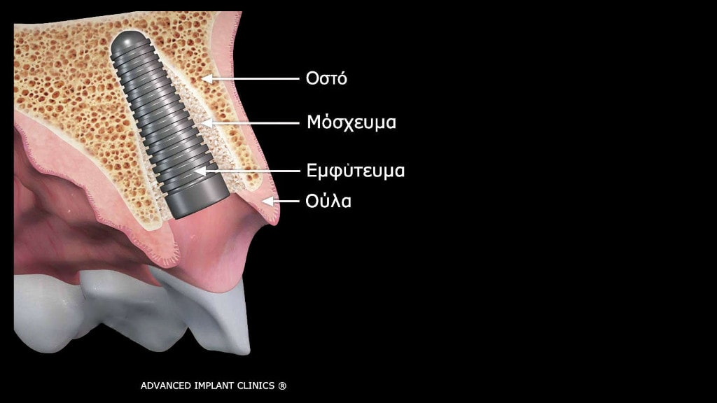 Αποκατάσταση εμφυτευμάτων δοντιών με χρήση της τελευταίας τεχνολογίας
